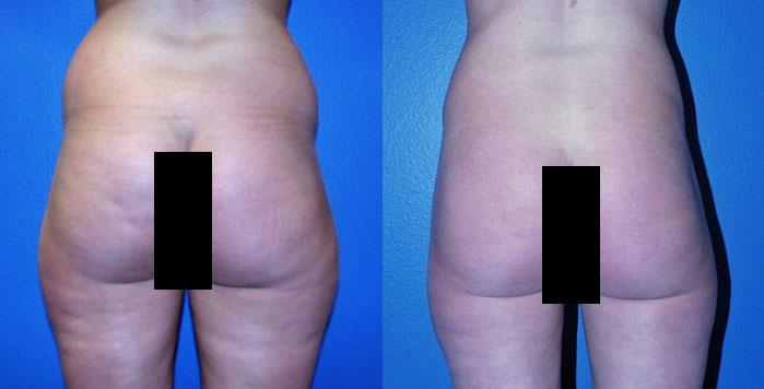 Liposuction in Reno Nevada