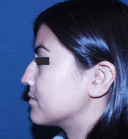 Rhinoplasty Patient Before and After Reno NV
