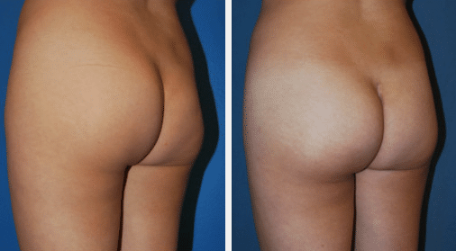 Buttock Implants Reno, NV