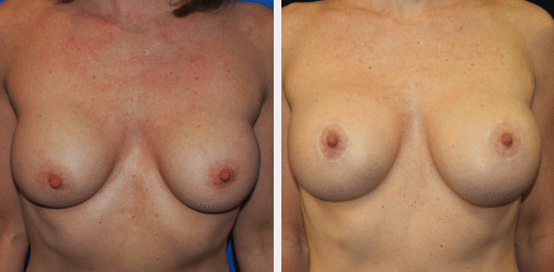 Breast Implant Exchange Before & After