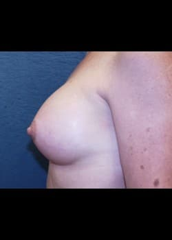 Breast Augmentation Patient # 71450