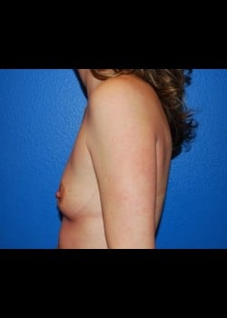 Breast Augmentation-Gel Patient # 2516
