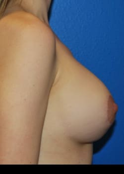 Breast Augmentation-Gel Patient # 8070