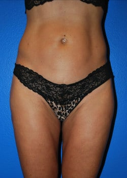 Thermitight with Liposculpture Patient #3965