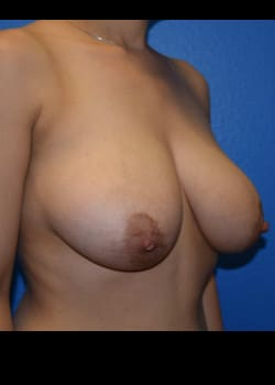 Breast Augmentation With Lift Patient # 4087