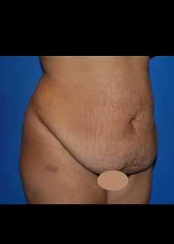 Tummy Tuck & Liposuction Patient # 4145