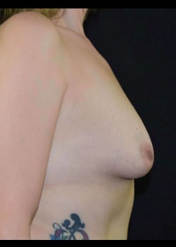 Breast Augmentation With Lift Patient # 4977
